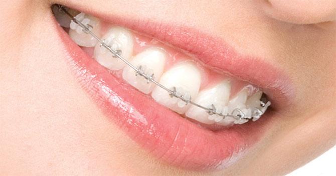 Orthodontic Treatments – Bringing Teeth into Alignment